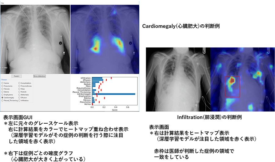 Cardiomegalyの判断例・Infiltrationの判断例