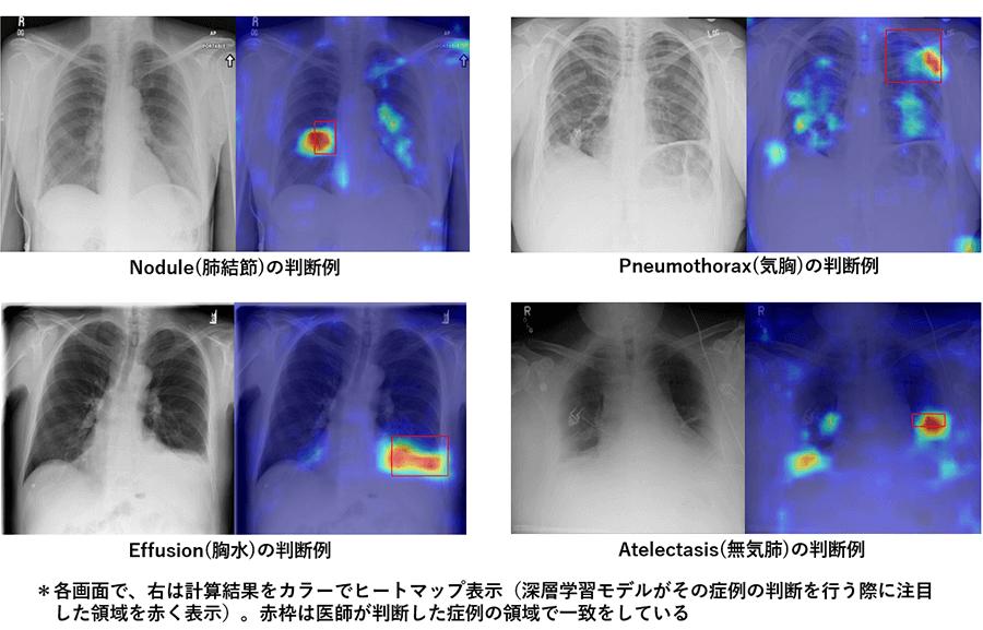 Noduleの判断例・Pneumothoraxの判断例・Effusionの判断例・Atelectasisの判断例